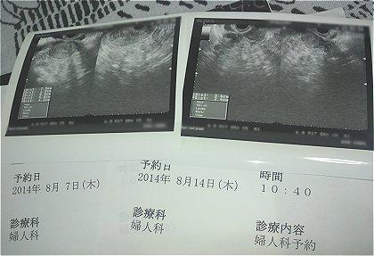 子宮筋腫2こ