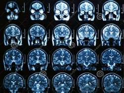 mri-brain-scan-28673236[1]