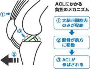 ACL-300x230.jpg