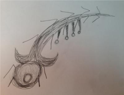 eye-worm