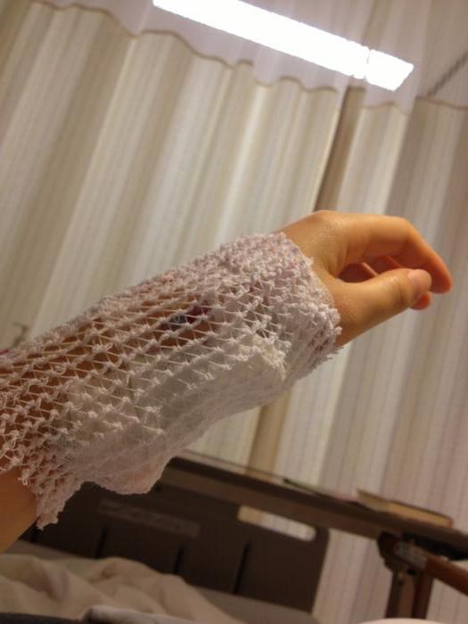 抗がん剤後の腕