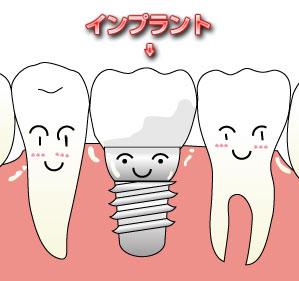 14_implant.jpg