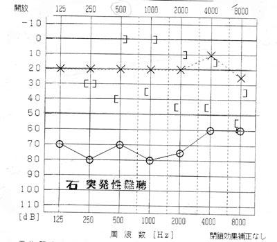 01_突発性難聴のデータ002small