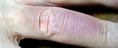 指の炎症痕もどき (14/05/14)
