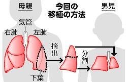 区域単位の肺移植