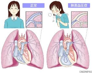 肺高血圧症・肺性心