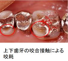 右上臼歯の咬耗