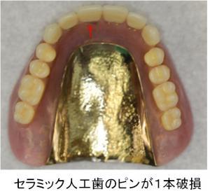 上顎義歯の10年後