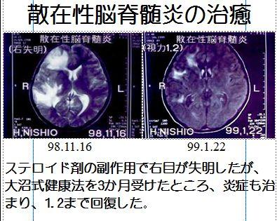 散在性脳脊髄炎
