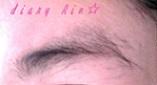 44日後左眉