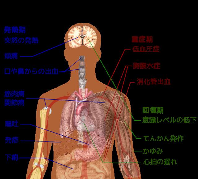 Dengue_fever_symptoms_with_Japanese_labels_svg.png