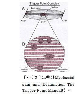 トリガーポイント構造